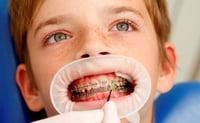 Un barniz con flúor fluido protege las zonas del diente de difícil acceso, como en el caso de los pacientes con ortodoncia.
