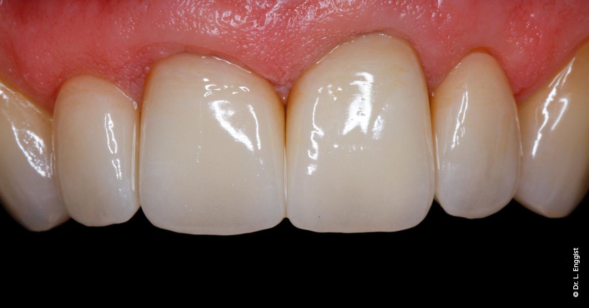 Die professionelle Pflege mit der feinen Proxyt ohne Bimsstein lässt die Ästhetik wertvoller Keramikversorgungen zur Geltung kommen (Bild: Dr. L. Enggist).