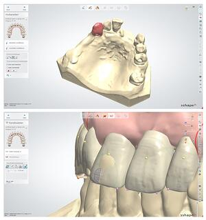 Digital Denture software