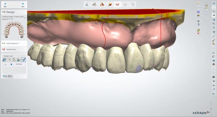Le logiciel « Digital Denture »