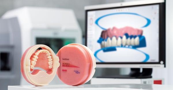 Ivotion Denture System revolutioniert die Fertigung von abnehmbarem Zahnersatz Featured Image
